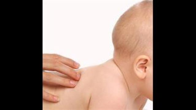 The Difference Between Cradle Cap And Dandruff