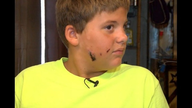 Child Attacked by Pit Bull on Road to Recovery